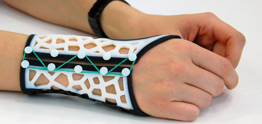 Loughborough University lecturer developed software for clinicians to design and make custom-made 3D printed wrist splints for rheumatoid arthritis sufferers