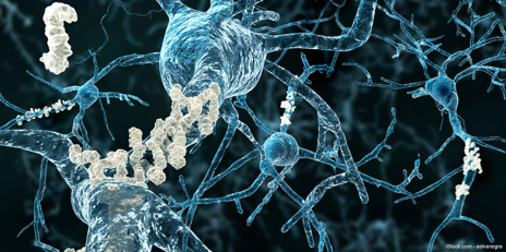 At the axons of neurons, plaques of strucutrally modified proteins (grey) accumulate and are the root cause of neurodegenerative diseases such as Parkinson's or Alzheimer's disease. (Graphics: selvanegra/istockphoto.com)