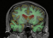 New study in Journal of Pathology Why do Alzheimer's trials fail?