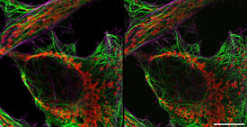 Comparison between confocal and Airyscan image. HeLa cells, red: mitochondria membrane, green: microtubuli, magenta: actin fibres; acquired with LSM 800. Scale bar 5 µm. Sample courtesy of A. Seitz, EPFL, Lausanne, Switzerland.