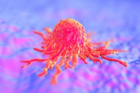 The University of Aberdeen secures £1.5million grant from Cancer Research UK to study how tumours develop
