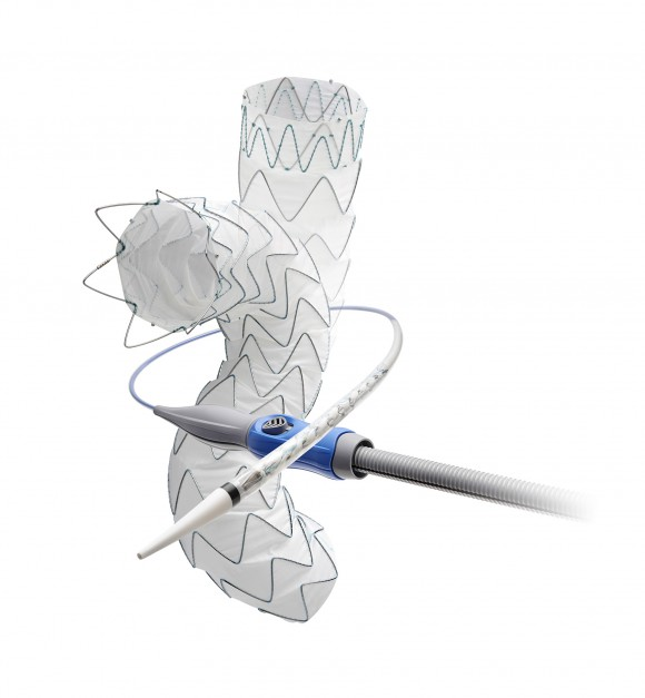 The Medtronic Valiant(TM) Evo Thoracic Stent Graft System